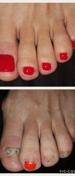 Protetika za nokte i stopala