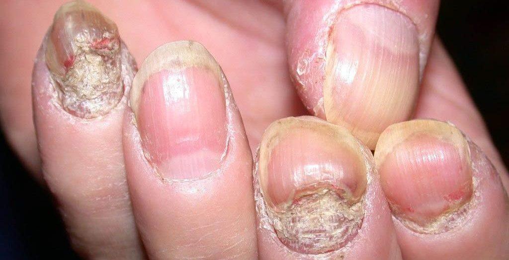 Laserski tretman psorijaze nokta