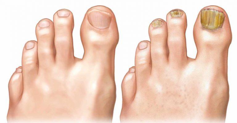 Uklanjanje gljivica na noktima i koži