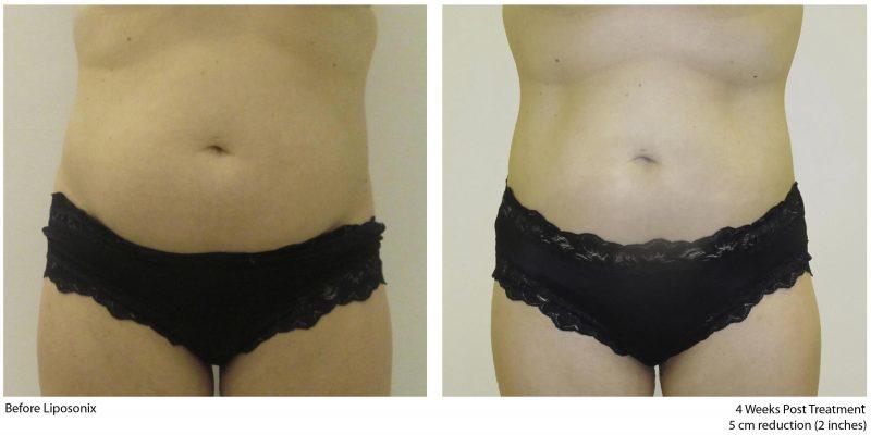 HIFU Liposonix liposukcija